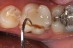 molare inferiore devitalizzato, non protetto con corona protesica, fratturato; necessaria estrazione e sostituzione con impianto endosseo singolo