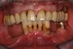 la bocca prima dell'intervento: i denti anteriori verranno estratti e saranno inseriti 5 impianti endossei su cui sarà avvitata una protesi sostitutiva dell'intera arcata (Toronto bridge)