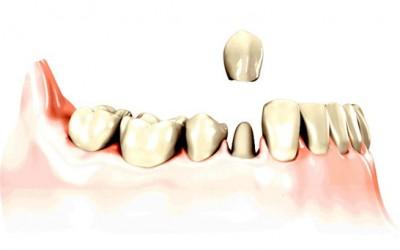 corona protesica singola su dente naturale