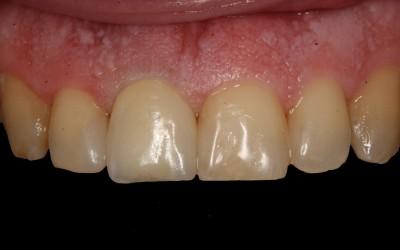2 - risultato finale; corona protesica singola su dente naturale