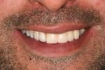 7 – il sorriso del paziente