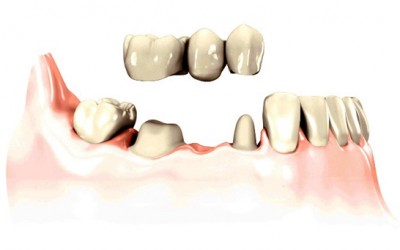 ponte protesico fisso di 3 elementi su 2 denti naturali
