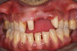 2 – dopo la preparazione dei 2 denti pilastro del ponte protesico fisso di 4 elementi
