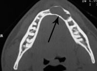 Tomografia Computerizzata (TC) con Dentascan - cisti mandibolare