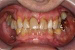 ultrasettantenne senza alcuna pretesa estetica chiede di salvare il salvabile e sostituire i denti mancanti con la minore spesa possibile