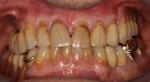 un anno dopo il termine dei lavori odontoiatrici