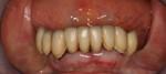 la bocca prima dell'intervento: i denti anteriori verranno estratti e saranno inseriti 4 impianti endossei su cui sarà avvitata una protesi sostitutiva dell'intera arcata (Toronto bridge, All-on-4)