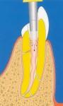 endodonzia - devitalizzazione - terapia canalare