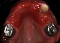 situazione iniziale: i 3 denti superiori residui validi senza la protesi mobile