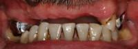 situazione iniziale; i 3 denti superiori residui validi senza la protesi mobile scheletrata