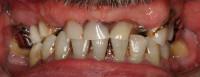 situazione iniziale; arcata superiore con 3 denti residui validi che sostengono una protesi mobile scheletrata totalmente incongrua