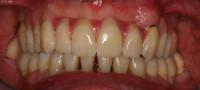 lavoro finito; protesi totale superiore su 3 corone telescopiche in sede; la protesi può essere facilmente rimossa dal paziente per l'igiene orale