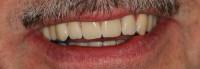 risultato finale, il sorriso del Paziente