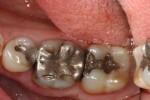 molare con grossa ricostruzione in amalgama d'argento infiltrata e da sostituire