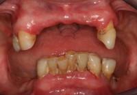 situazione iniziale senza le protesi mobili parziali: i denti sono mobili e con profonde carie radicolari