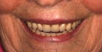il sorriso della Paziente con le 2 nuove protesi totali in bocca