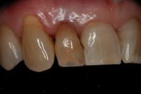 carie su vecchie ricostruzioni di denti anteriori superiori