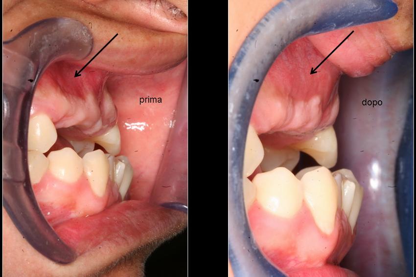 Innesti d'osso, estrazione denti inclusi - Granuloma e ...