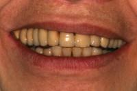il sorriso della Paziente; l'asimmetria del movimento delle labbra scopre il lato destro più del sinistro