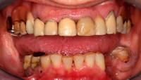 situazione iniziale; si programma la riabilitazione completa della bocca con protesi fisse su entrambe le arcate