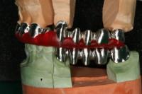 strutture metalliche CAD-CAM