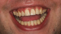 il sorriso del paziente a lavoro finito; il fatto che il sorriso scopra abbondantemente le mucose oltre i colletti dei denti superiori rende questo risultato particolarmente soddisfacente.