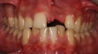questo ragazzo ha perso un incisivo centrale superiore per un trauma; procediamo con terapia ortodontica per riallineare tutti i denti e ricreare lo spazio naturale (più stretto) dove inserire un impianto e la relativa corona protesica dell'incisivo
