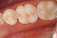 intarsio conservativo ed estetico cementato sul dente; rispetto alla ricostruzione diretta in bocca l'intarsio è più resistente all'abrasione, più duraturo, più estetico e preciso