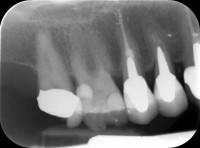 terapia canalare molare superiore - prima