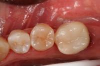 ricostruzione estetica del molare completata dopo la devitalizzazione