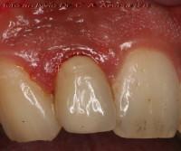 incisivo laterale sup.dx con margine di chiusura impreciso che crea infiammazione gengivale