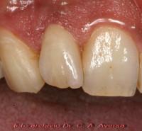 lavoro finito, ottima estetica dentale e gengive in salute