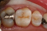 intarsio conservativo ed estetico cementato sul dente