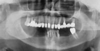 OPT prima; i denti dell'arcata inferiore sono destinati all'estrazione e viene progettata una sostituzione immediata con 5 impianti e protesi fissa tipo Toronto a carico immediato