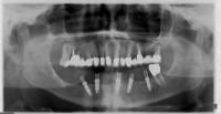 OPT dopo: i denti anteriori sono stati estratti e sono stati inseriti 5 impianti Nobel Biocare MK3