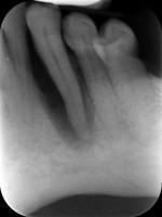 radografia endorale digitale
