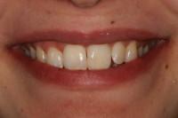 ... il nuovo sorriso della Paziente