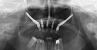 caso1 - OPT postoperatoria
