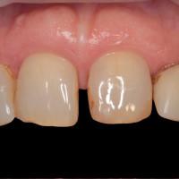 vista frontale preoperatoria; la paziente chiede di eliminare lo spazio fra i denti