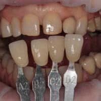 riferimenti per le tonalità delle successive corone protesiche su impianti