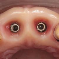 rimossi i monconi implantari temporanei