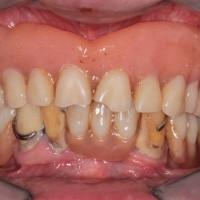 situazione di partenza: dentiera sup. e vecchio scheletrato inf. su denti da estrarre